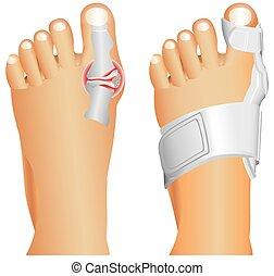 grande, lesión, dedo del pie