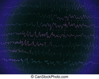 graph brain wave EEG