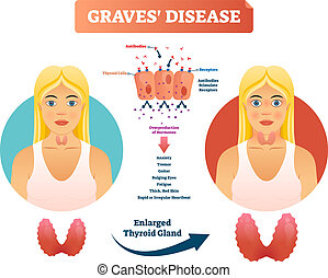 Graves disease vector illustration. Labeled diagnosis...