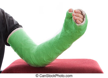 Green long arm plaster / fiberglass cast resting on ottoman...