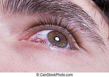 green men eye with red blood vessels macro