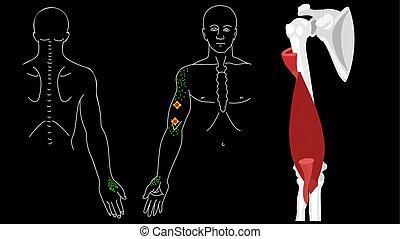 grilletto, muscle., punti, brachialis, braccio