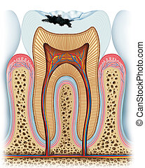 Anatomy of a tooth with the start of a cavity