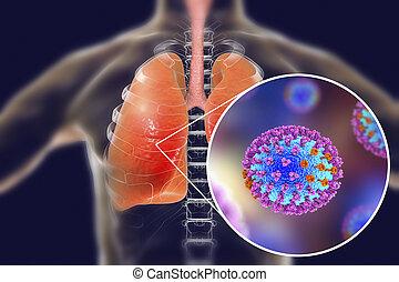 grippe, viren, menschliche , lungen