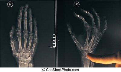 gros plan, coup, démontrer, docteur, image, main, 4k, femme, patient., rayon x