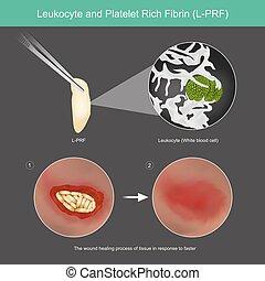 guérison, tissu, peau, processus, riche, leucocyte, blessure, plaquette, fibrin., l-prf., usage, fibrin, illustration