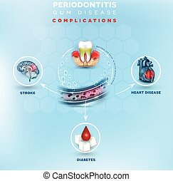 Gum disease complications poster