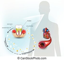 Gum disease inflammation bacteria can enter in to the blood ...