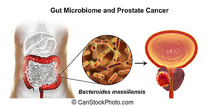 Gut microbiome and prostate cancer