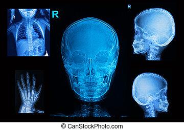 gyűjtés, közül, gyerekek, röntgensugarak, kép, előadás, koponya, láda, és, kéz