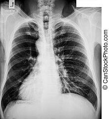 gyűjtés, közül, röntgen
