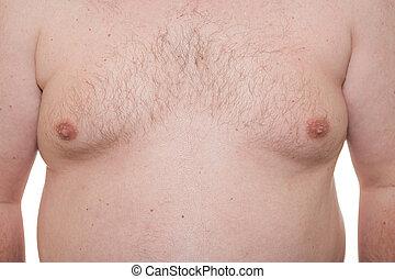 gynecomastia, mostrando, cedo, macho, tórax, fase