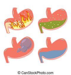 gyomor, hasi, folyékony, elbocsát, orvosi, zöld, visszafolyás, összezavar, pyrosis, gyomor, sav, labda, dagadt, set.