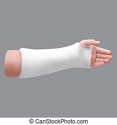 Gypsized broken arm. Isolated realistic object. Vector ...