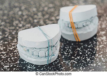 Gypsum model of a human jaw with teeth, made in a dental laboratory