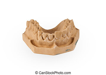 Gypsum model of human jaw
