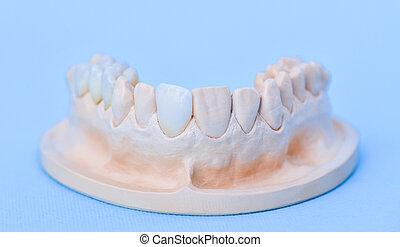 Gypsum model of human jaw