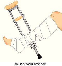 Gypsum on leg and crutches