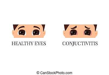 hälsosam, ögon, vs, conjuctivitis
