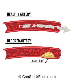 hälsosam, pulsåder, blockerat
