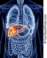 hígado, cáncer