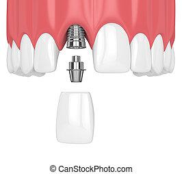 höher, render, kiefer, dental, z�hne, implantat,...