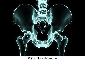 hüfte, röntgenaufnahme
