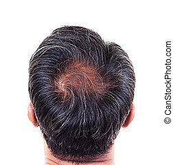 hair loss and grey hair, Male head with hair loss symptoms...