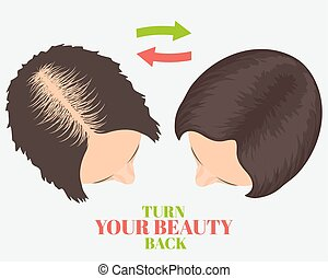 Hair loss beauty concept - Woman losing hair before and ...