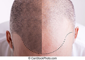 Hair Loss - Before and After - Top view of a men's head with...