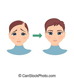 Woman with alopecia before and after hair treatment and transplantation. Female hair loss set. Before and after make over series of a balding lady. Beauty concept design. Isolated vector illustration.