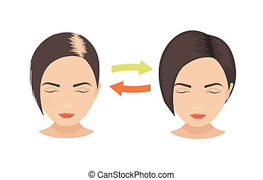 Hair loss in women - Woman with hair loss problems before...