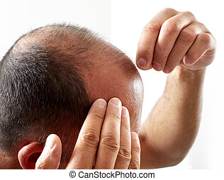 Hair loss. - Man touching head with his hands. Hair loss...