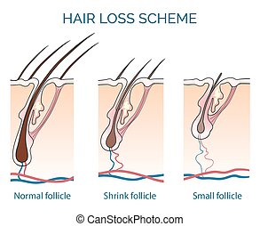 Hair loss scheme. Loss hair, growth hair problem, health...