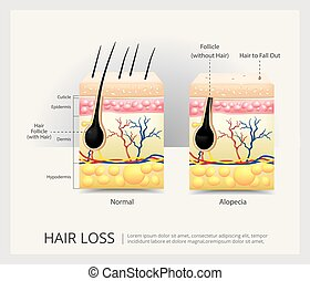 Hair Loss Structure Vector Illustration