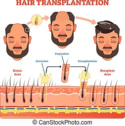 Hair Transplantation procedure diagram with steps
