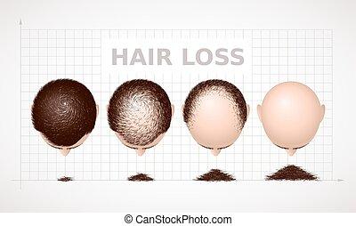 haj, loss., alopecia, ábra, négy, előad