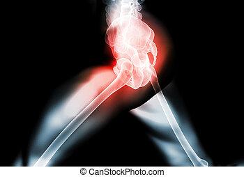 hanche, squelette, 3d, rayon x, douloureux, illustration.
