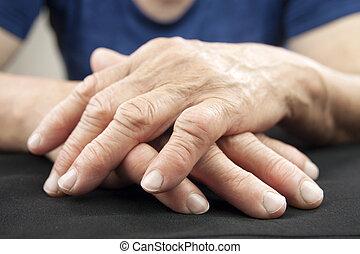 hand, av, kvinna, deformerat, från, ledgångsreumatismen
