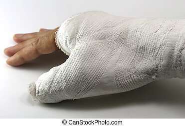 hand in the emergency room after the fracture of the thumb due t
