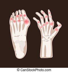 HAND LEG ARTHRITIS Rheumatoid Medicine Education Vector ...