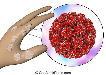 hand, mit, warzen, und, papillomavirus