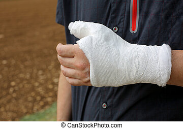 person with the thumb and wrist completely plastered after the f