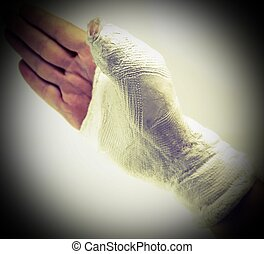 Hand of the injured person with the broken limb