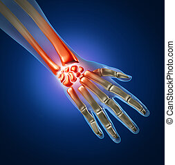 Human hand and wrist pain caused by arthritis and sports or carpal tunnel syndrome injury in the hand joint as an anatomy with skeleton and highlighted injured body part as a medical and health care icon.