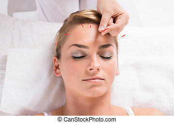 Hand Performing Acupuncture Therapy On Patient's Head