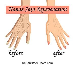 Hand skin rejuvenation, vector illustration isolated on the white background