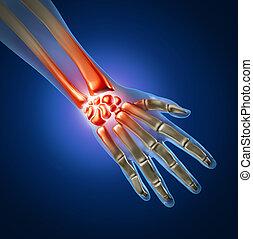 hand, smärta