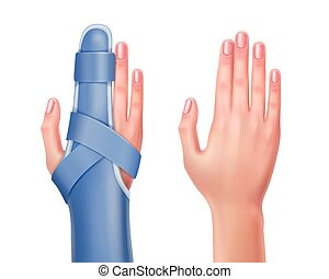Hand with brace - Vector empty hand and trauma of hand with...