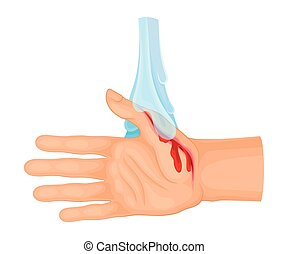 Hand with Wound Streaming Blood Under Cold Tap Water for ...